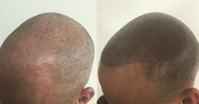 The Best Way To Deal With Premature Hair Loss