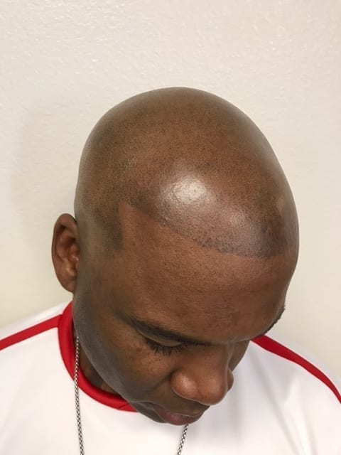 Who Is A Candidate For Scalp Micro Pigmentation