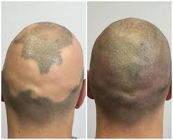 Las Vegas Scalp Micropigmentation