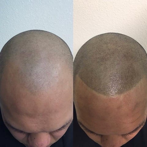 Scalp Micropigmentation is The Best For Hair Loss