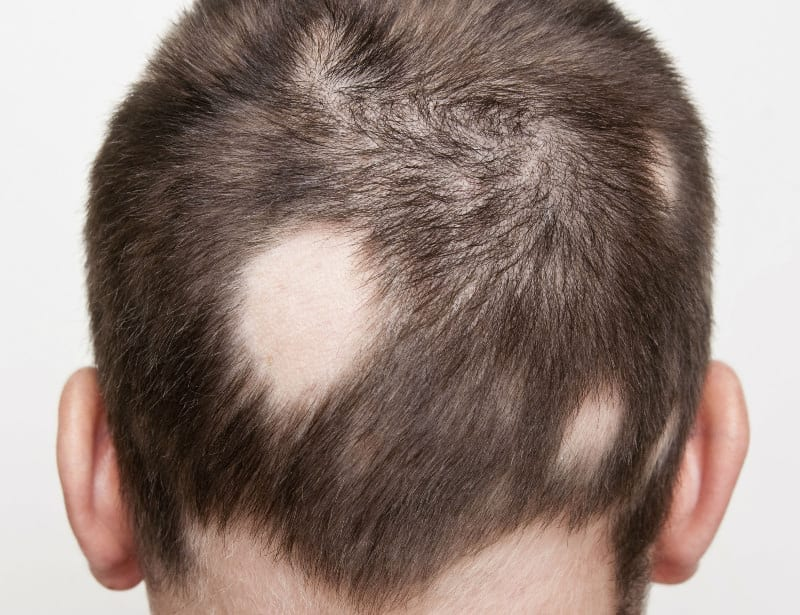 Hair Loss Related to Alopecia