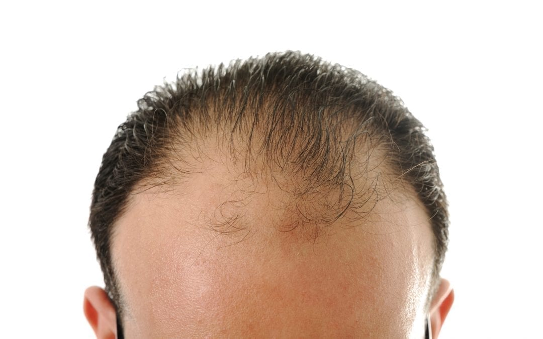 Reasons and Causes of Hair Loss