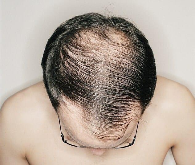 Stress Induced Hair Loss