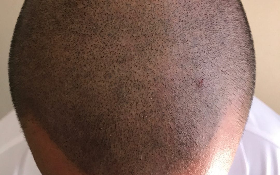 Scalp Micro Pigmentation: You Get What You Pay For!