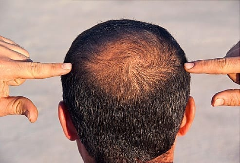 Root Cause Of Balding and Hair Greying Study