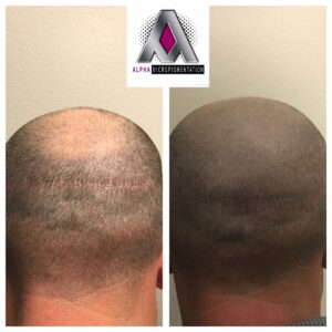 Scalp Micropigmenation Las Vegas
