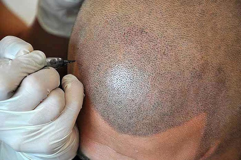 Elements That Determine the Results of Scalp Micropigmentation