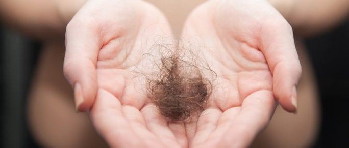 Hair Loss Scalp Micropigmentation