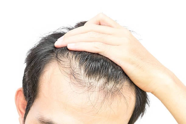 Starting to Go Bald? Don't Just Wear a Cap