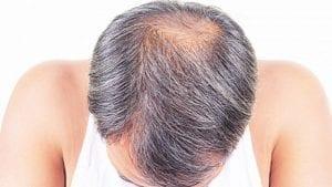 Alpha Micropigmentation Hair Loss