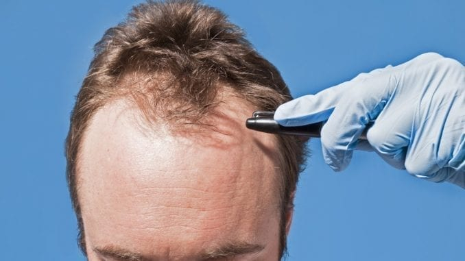 How Men Can Cope With Hair Loss