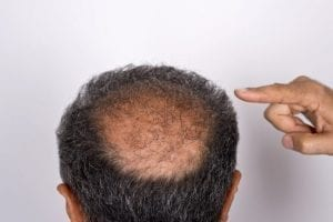 Scalp Micropigmentation Las Vegas
