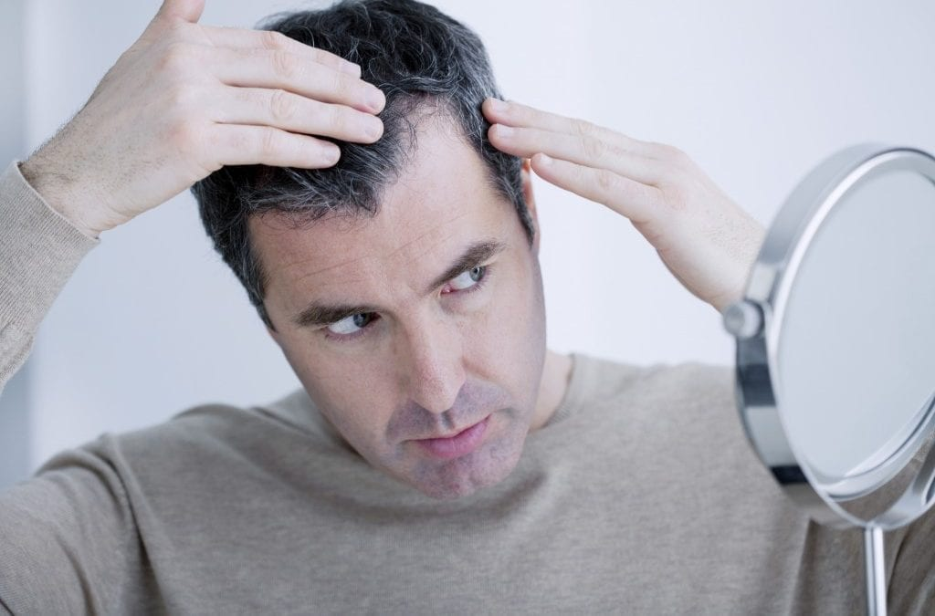 Scalp Micropigmentation: An Alternative Hair Loss Solution