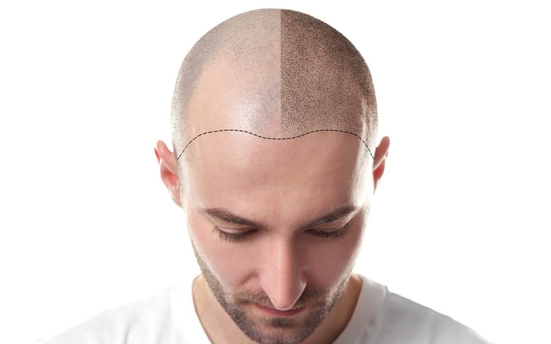 Scalp Micropigmentation: The Pre- and Post-Procedure Care Tips